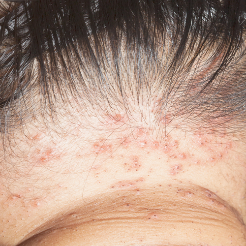 head lice bites neck